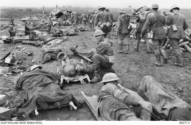25.9a Men wounded in the Ypres Battle waiting along the Menin Road.jpg